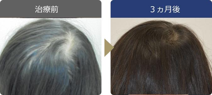 AGAINメディカルクリニックで薄毛治療に成功した21歳