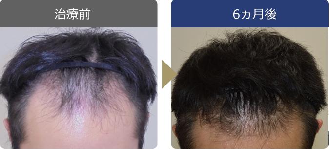 AGAINメディカルクリニックで薄毛治療に成功した24歳