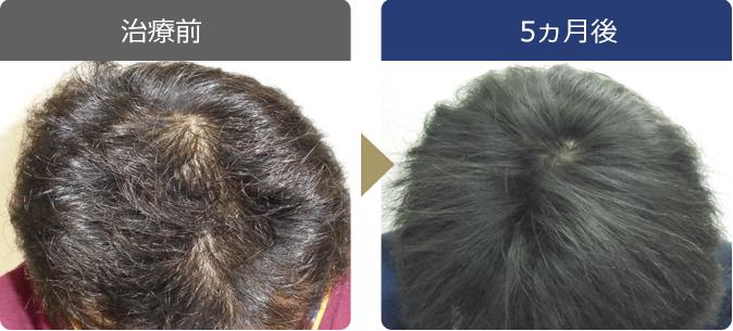 AGAINメディカルクリニックで薄毛治療に成功した30歳