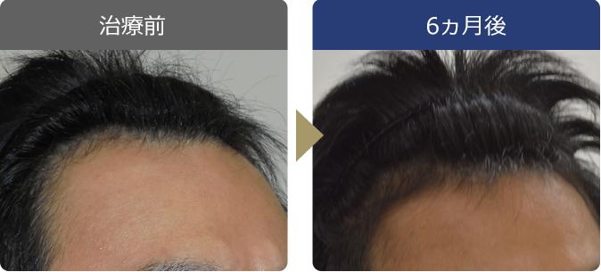 AGAINメディカルクリニックで薄毛治療に成功した36歳