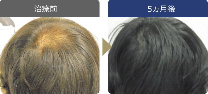 AGAINメディカルクリニックで薄毛治療に成功した38歳