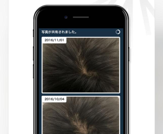 AGAヘアクリニックのアプリの説明1