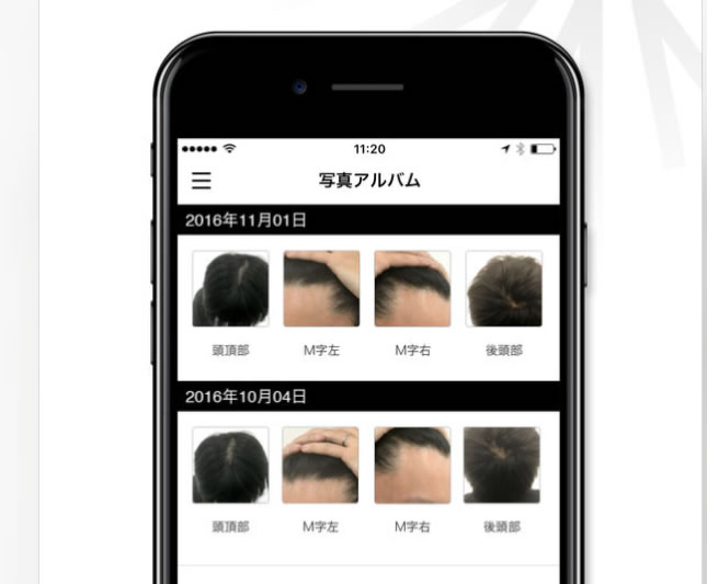 AGAヘアクリニックのアプリの説明2