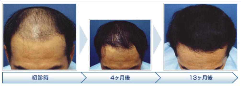 薄毛患者の通院治療後
