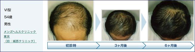 薄毛患者松本さんの通院治療後