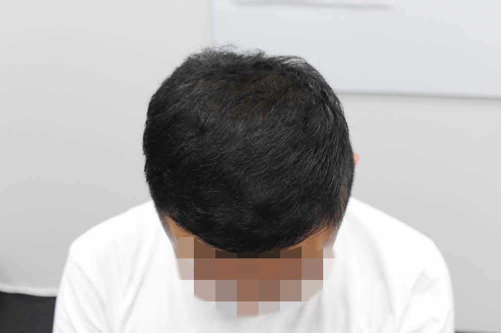 薄毛が治った松本さんの頭頂部