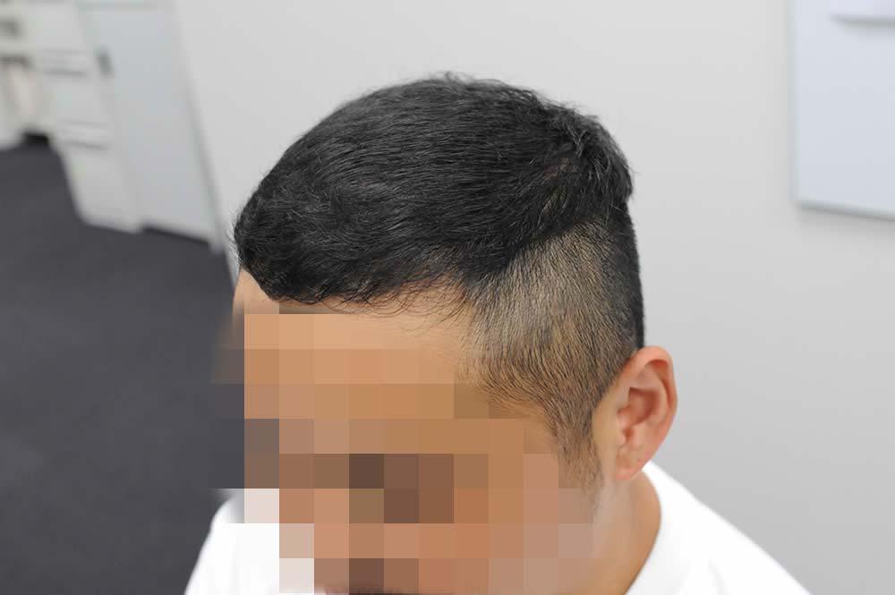薄毛が治った頭部の斜め写真