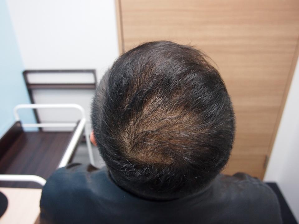 薄毛患者松本さんの通院治療前
