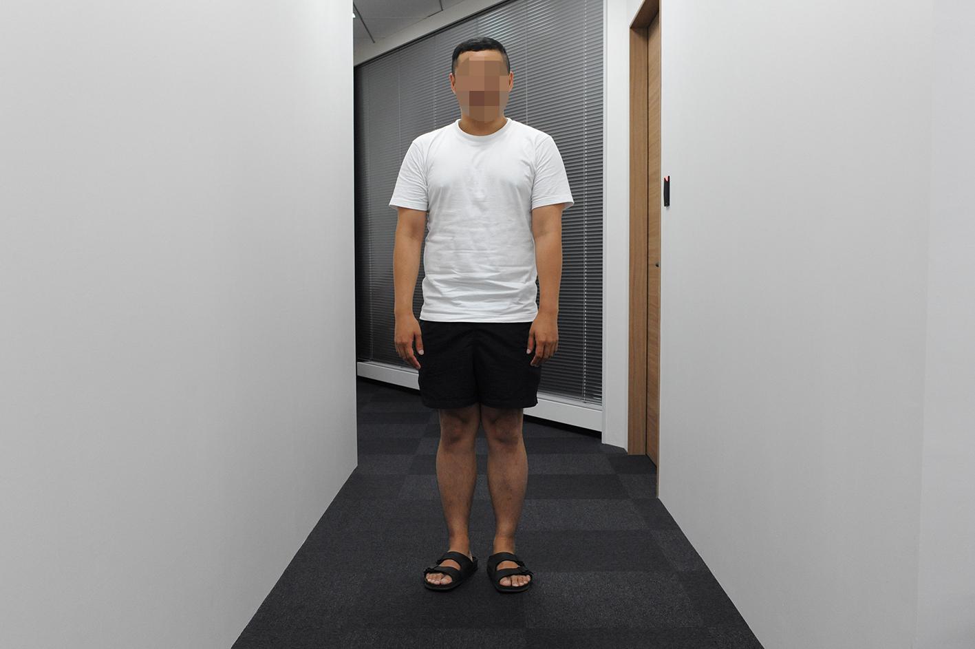 薄毛患者松本さんの全身