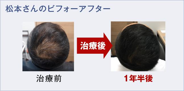 松本さんの薄毛治療ビフォーアフター
