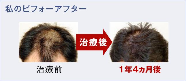 僕の薄毛治療ビフォーアフター